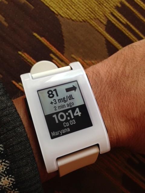Мониторинг и часы на экране Pebble